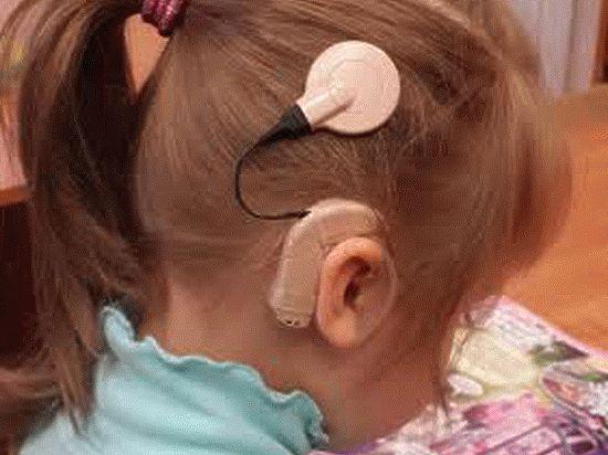 Уникальные операции позволяют глухим детям узнать, как звучит мир